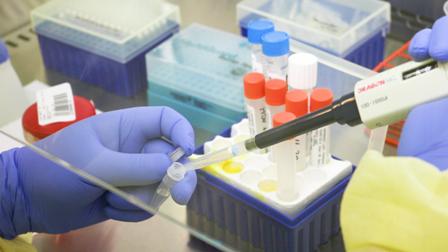 Hospital Regional de Temuco realizará diagnóstico para Coronavirus COVID-19 - Red Informativa Villarrica